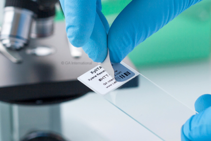 A removable blackout label is applied on a labeled microscope slide to conceal already existing information. The label is printed with text and a barcode