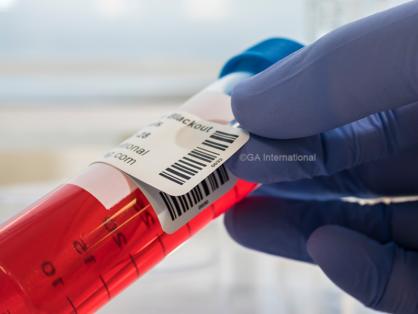 Über einem Etikett wird ein mit Barcode gedrucktes Etikett angebracht, um die vorhandenen Informationen auf einem 50 ml-Probenentnahmeröhrchen zu verdecken oder auszublenden.