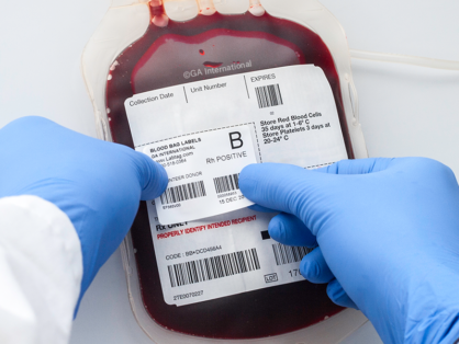 Hand wearing blue gloves applying a barcode printed secondary blood bag label, indicating blood type, to a full blood bag on top of a primary label.