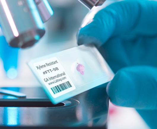 Eine behandschuhte Hand, die einen mit einem xylolbeständigen Thermotransfer-Etikett mit Barcode-Aufdruck beschrifteten Glas-Objektträger vor einem Mikroskop hält.